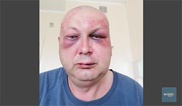 Милиционера, избившего водителя, прячут из-за начальника, который идет на повышение
