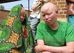 В Африке идут массовые убийства негров-альбиносов