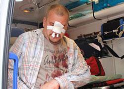 Польские хулиганы избили белорусов (Фото)