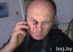 Сергей Гриц: Ударили кулаком в правый глаз, разбили очки
